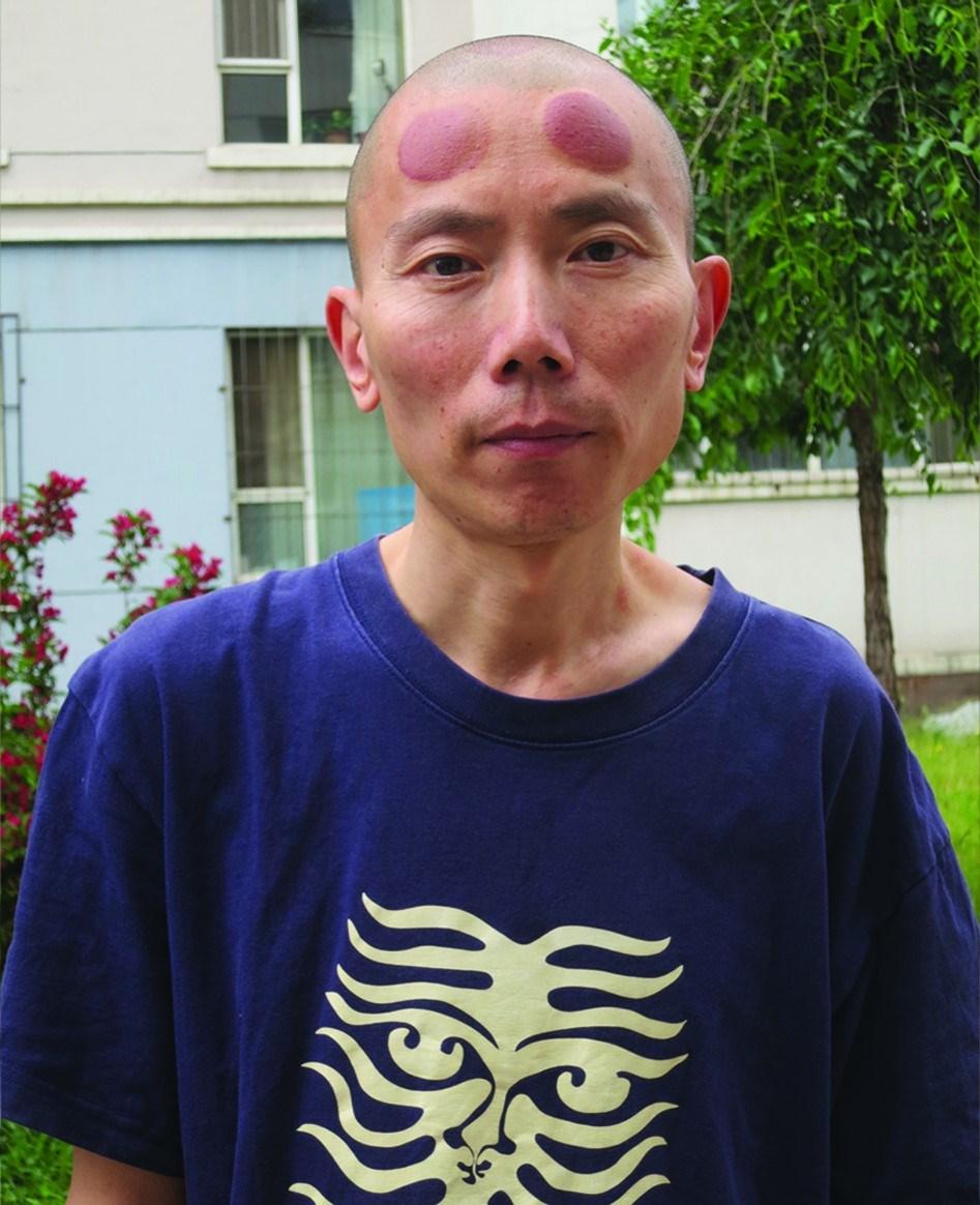 張銘額頭上兩個大大圓圓的紫紅色瘀青是「拔罐」留下的,這是唯一能減輕7年牢獄留給他劇烈頭痛的方法。(林慕蓮提供)