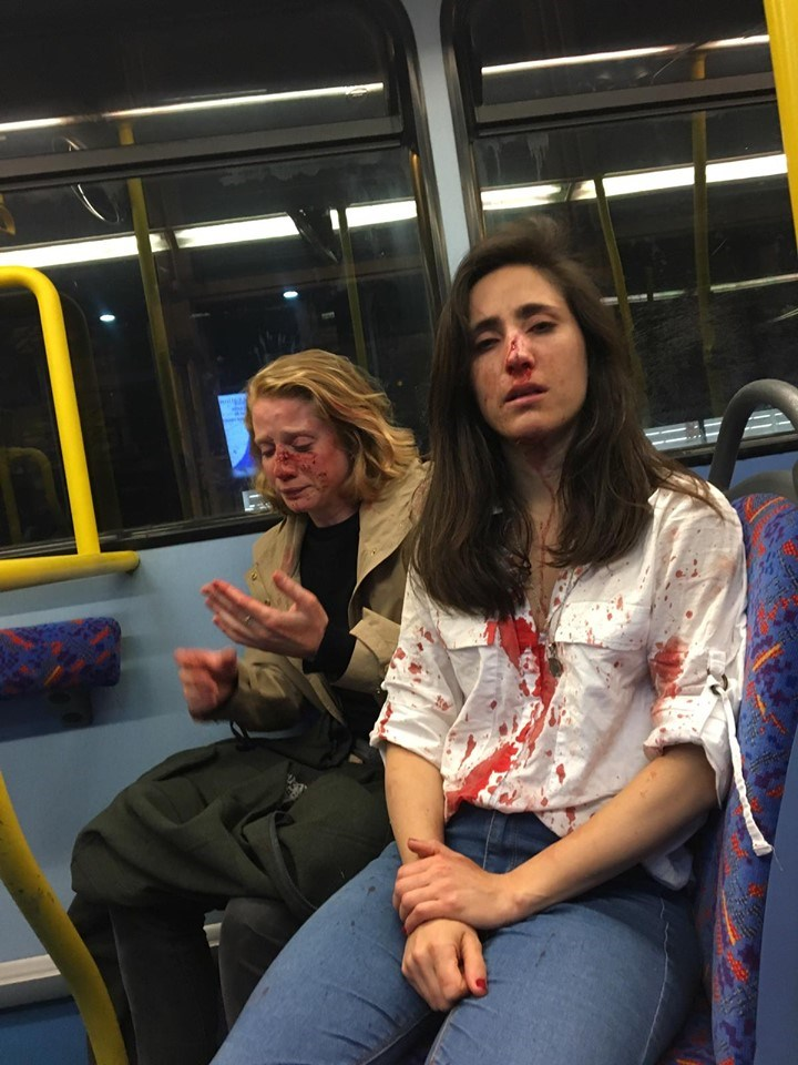 英國一對女同志情侶搭乘倫敦夜間巴士遭到言語騷擾,還被打得頭破血流,令各界震驚。(圖取自facebook.com/melaniapeese)