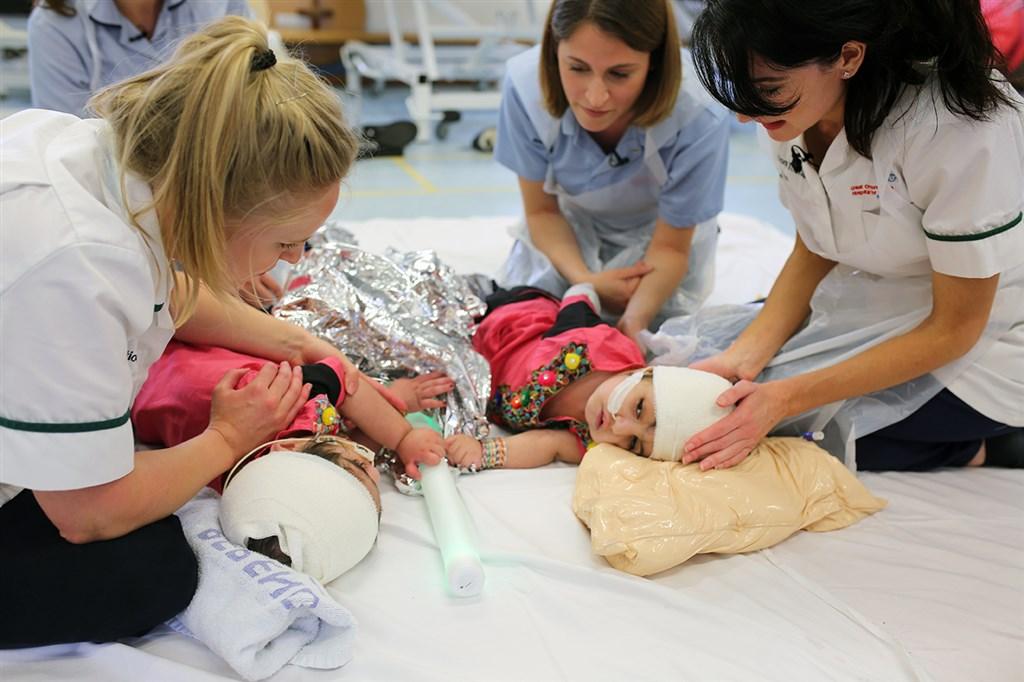 歷經逾50小時高度複雜的連串手術後,巴基斯坦2歲雙胞胎連頭女嬰終於在英國成功分割。(圖取自大奧蒙德街兒童醫院網頁gosh.nhs.uk)