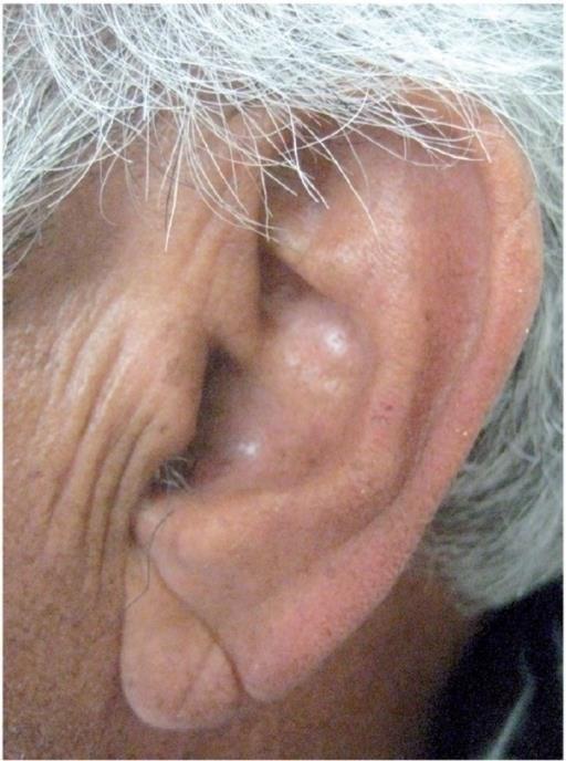 新光醫院心臟內科主治醫師洪惠風表示,除了耳垂皺褶外,2018年法國一項研究也指出,額頭上、眼尾的皺紋也有可能和心臟疾病有關。(圖取自史丹佛大學醫學院網頁med.stanford.edu)