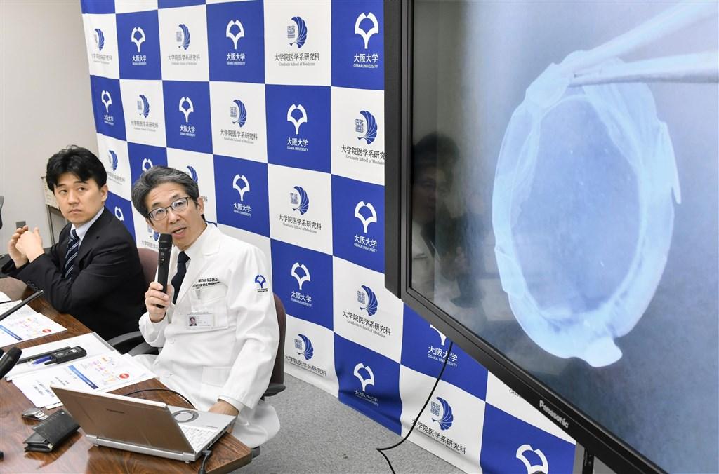 日本大阪大學教授西田幸二(右)的研究團隊把誘導性多功能幹細胞(iPS細胞)所製的眼角膜細胞移植到一名女性患者眼睛,創全球首例。(共同社提供)