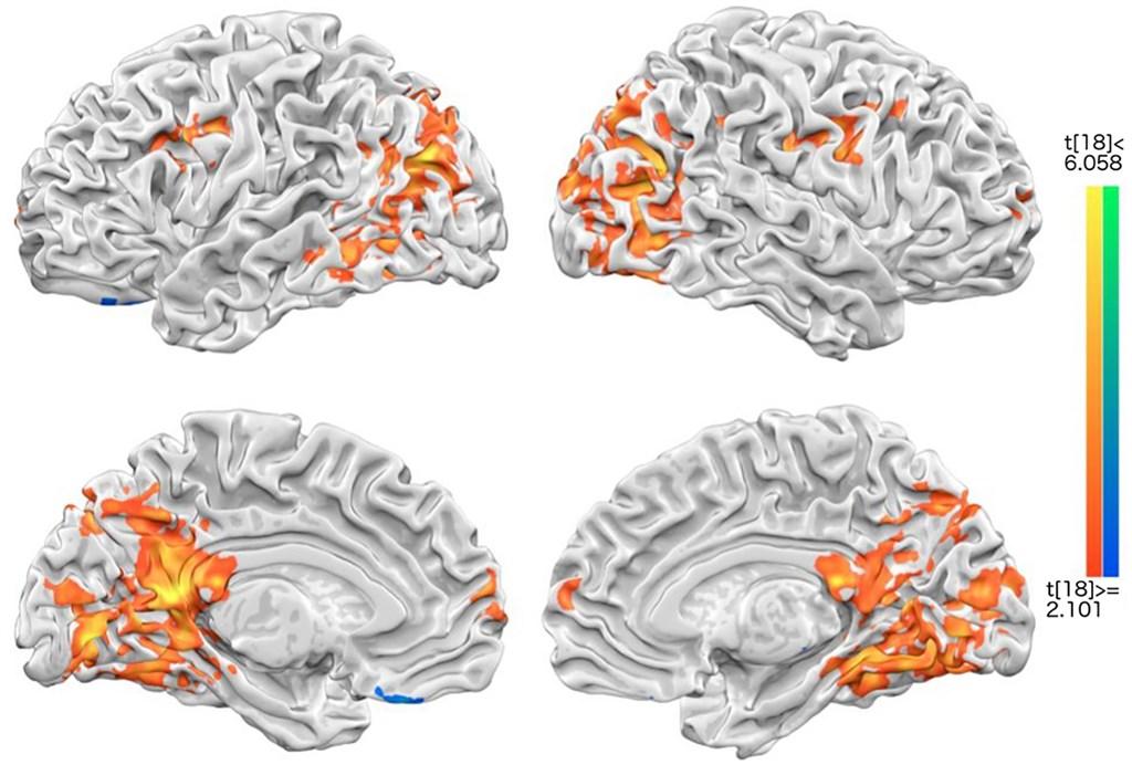 國立成功大學研究團隊發現,當受試者感覺幸福時,大腦與自我概念最有關的2個腦區會各自發亮,影像以同心圓方式擴散。(圖取自PLOS ONE期刊網頁journals.plos.org)