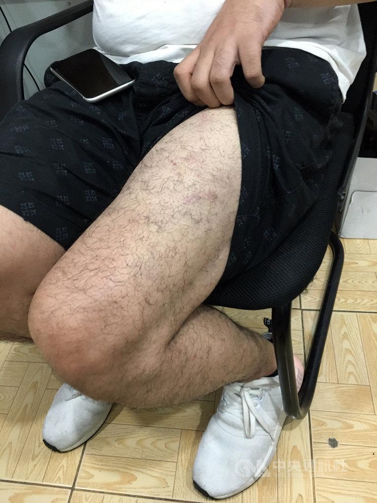 一名29歲的台灣人因租房糾紛,在大馬尼拉遭中國籍和馬來西亞籍嫌犯綁架虐打,18日晚上獲菲律賓警方救出。圖為被害人遭虐打傷痕。(菲律賓警方提供)中央社記者陳妍君傳真  108年10月22日