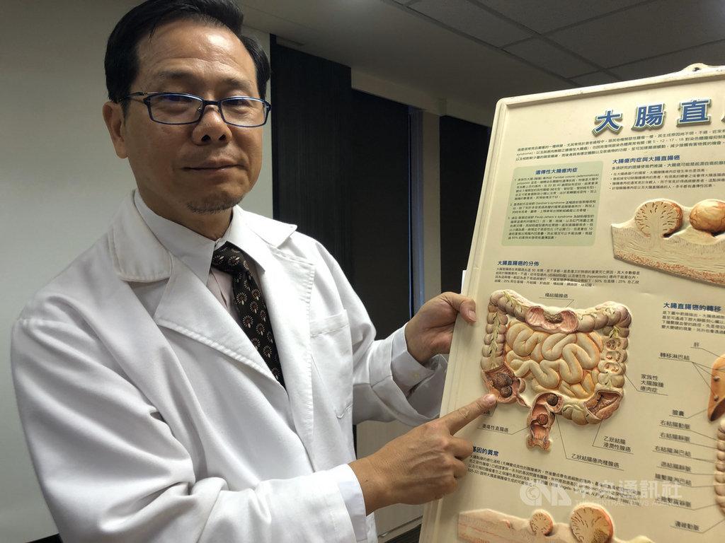 書田診所胃腸肝膽科主任醫師邱展賢8日指出,大腸癌常見的症狀包含不明原因腹痛超過1個月以上且疼痛位置固定、血便、貧血、體重減輕等。中央社記者陳偉婷攝 108年11月8日
