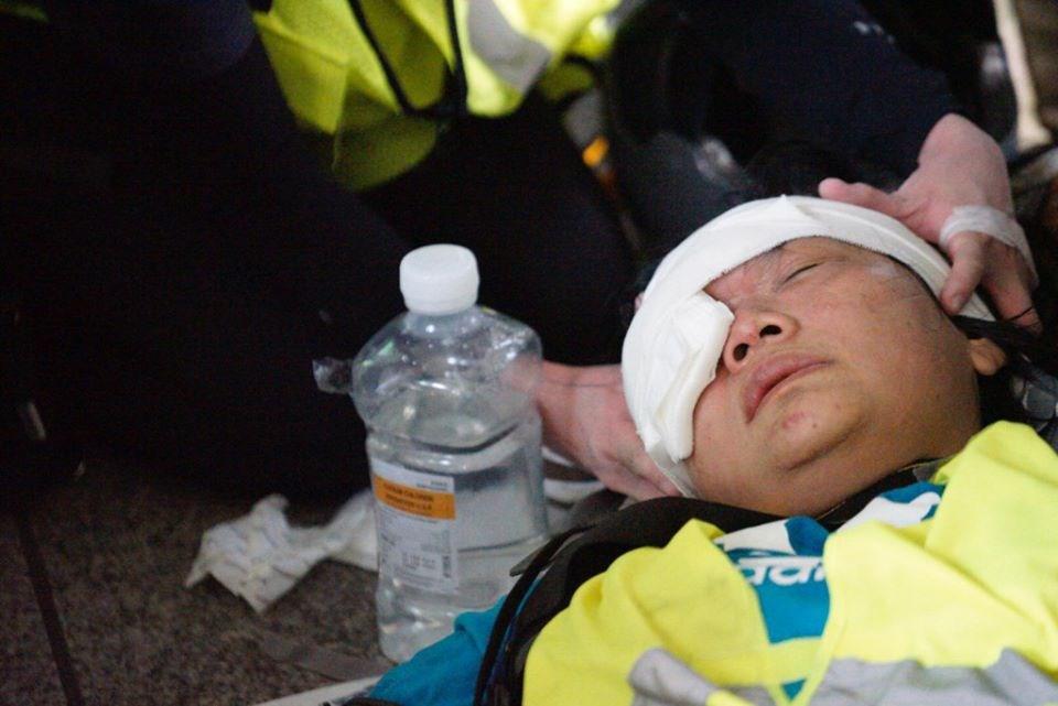 印尼女記者英達在香港報導反送中抗爭期間,遭港警發射疑似橡膠子彈擊中右眼失明。(眾新聞提供)