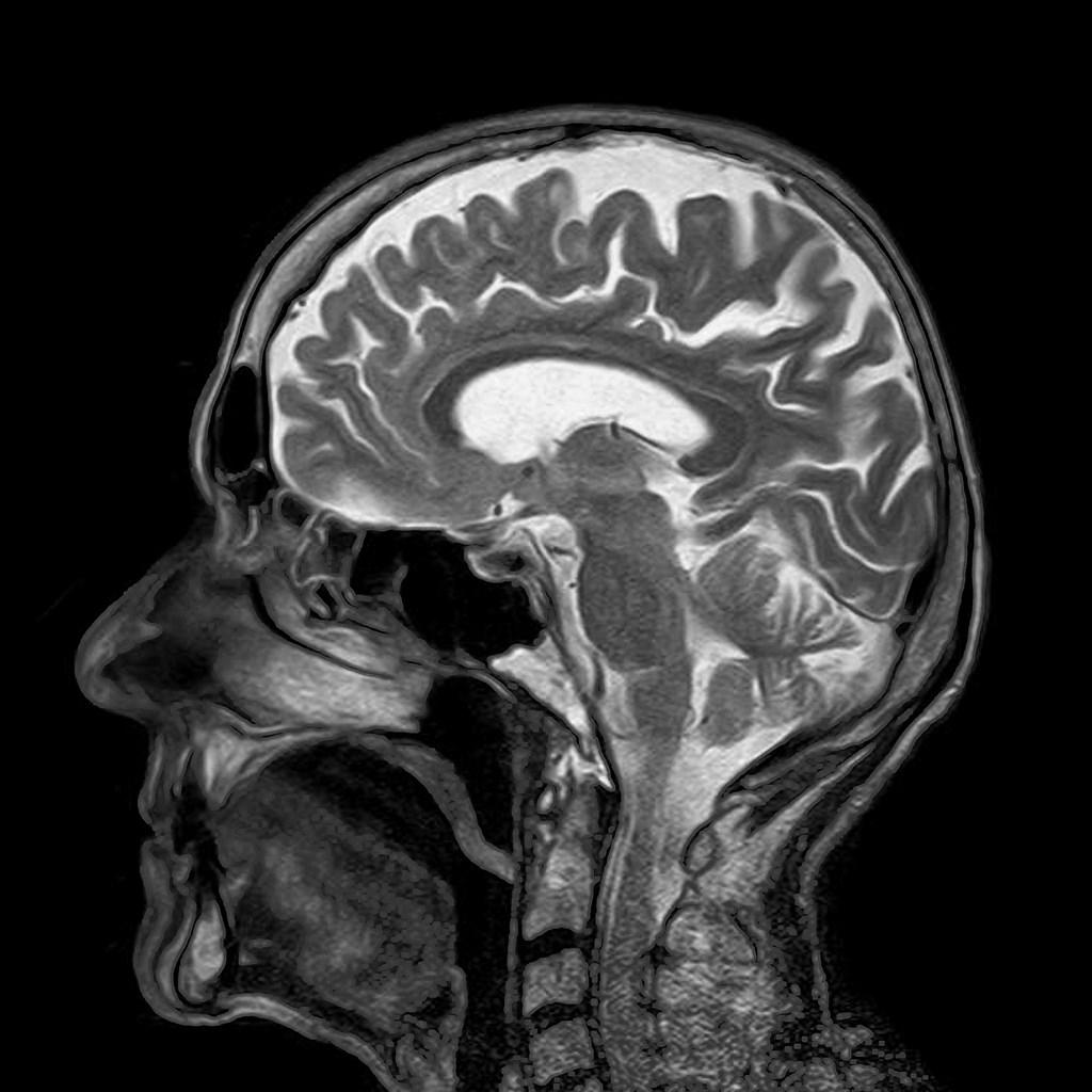 美國研究人員6日表示,人工智慧可以診斷並辨識出10種常見的腦癌,準確度跟真人醫師一樣。(示意圖/圖取自Pixabay圖庫)