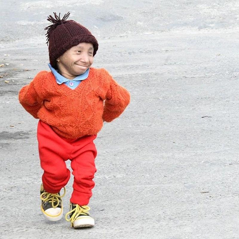 獲金氏世界紀錄認證的全球最矮可行走男子馬加爾,17日在尼泊爾一家醫院病逝,得年27歲。(圖取自金氏世界紀錄IG網頁instagram.com/guinnessworldrecords)