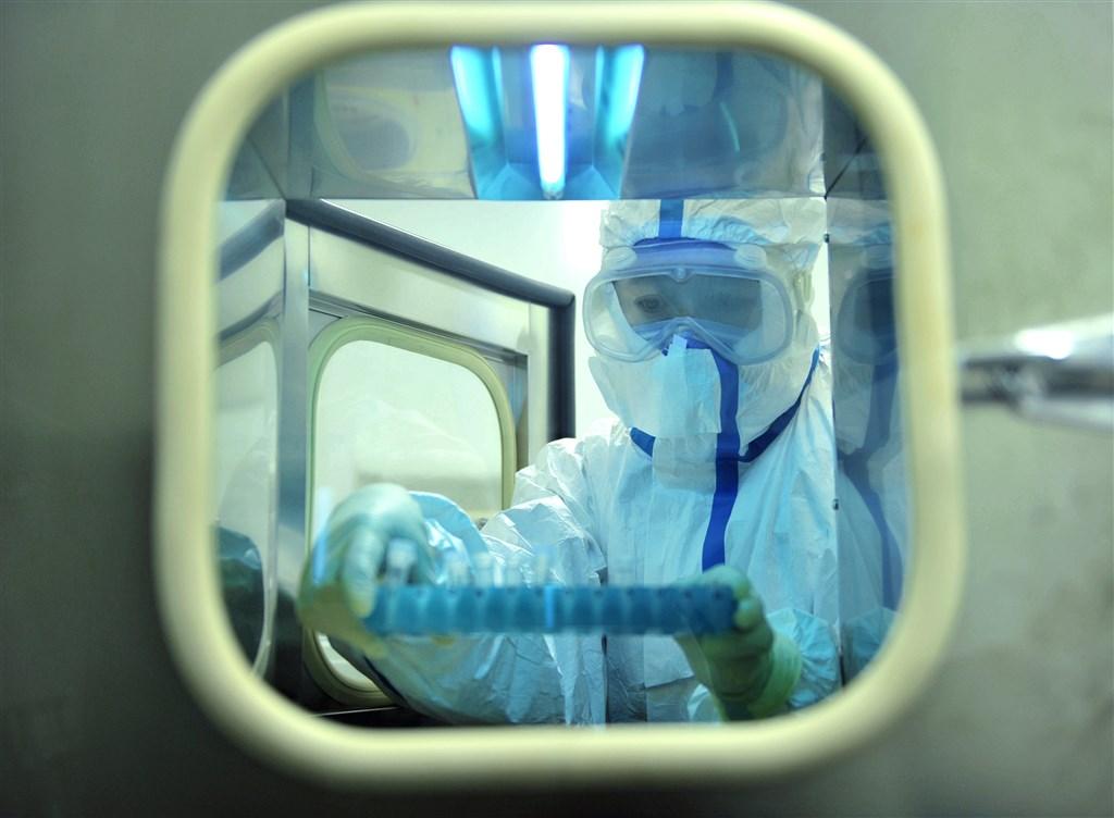 香港大學等機構研究指出,武漢肺炎患者的唾液病毒載量在症狀出現後第一週最高,之後隨著時間而下降,年紀愈長的患者病毒峰值載量愈高。圖為北京二路醫院病理醫生採檢樣本。(中新社提供)