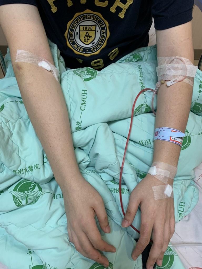 台中市議員張彥彤一家4口鉛中毒住院,張彥彤接受治療時,手臂插滿針頭管線。(張彥彤提供)中央社記者趙麗妍傳真 109年7月31日