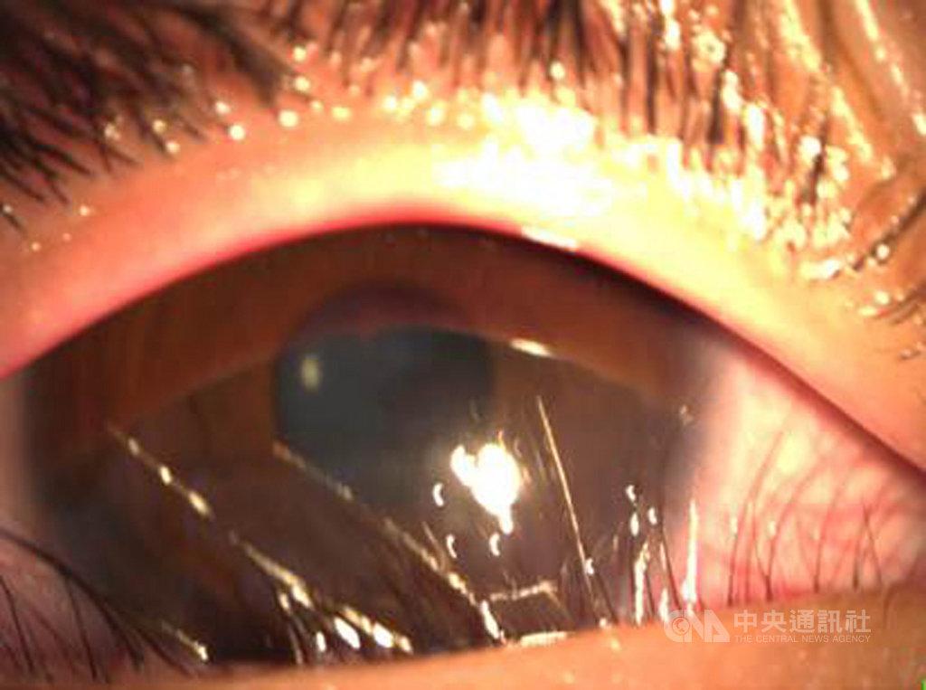 8歲男童變胖後經常喊眼睛痛、流眼淚,經醫師檢查發現男童眼睛的問題,其實是「下眼瞼贅皮」造成睫毛倒插進眼睛,透過下眼瞼贅皮手術獲得改善。(苗栗醫院提供)中央社記者管瑞平傳真  109年8月13日