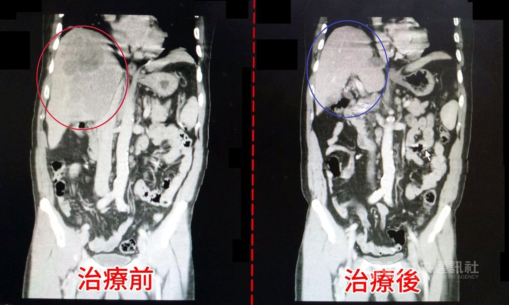 林姓男子患有C型肝炎加上喝酒習慣,肝臟長出一顆約14公分腫瘤,確診為晚期肝癌,經醫師評估以2次肝動脈化療,腹痛明顯改善,腫瘤也縮小至幾乎消失。圖為治療前後對比。(大千綜合醫院提供)中央社記者管瑞平傳真 109年9月29日