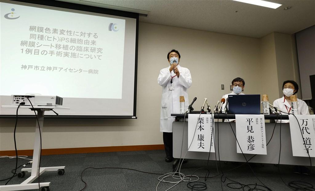 日本位於神戶市的研究團隊16日宣布,本月上旬成功用誘導性多功能幹細胞(iPS)製作的視細胞,移植至視網膜色素變性症患者的視網膜上,這是全球首例。(共同社)