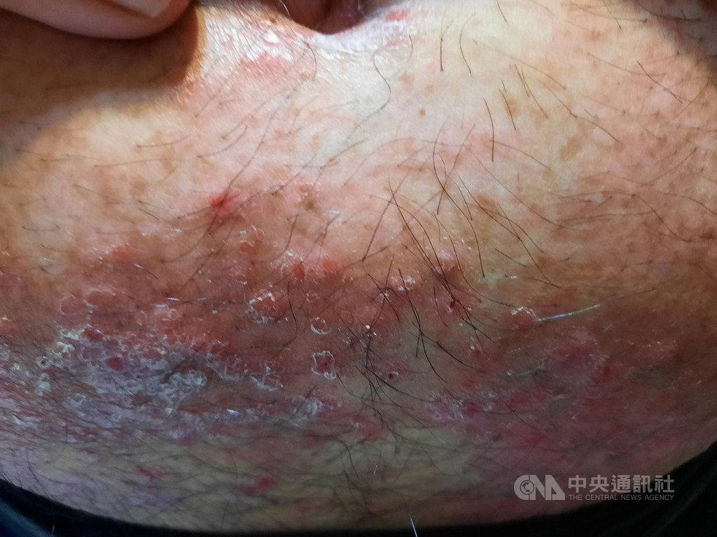 台灣乾癬協會指出,乾癬是身體免疫疾病,因免疫系統異常,皮層會加速生長,身體各部位表面都可能出現病灶,不具傳染性,但仍嚴重影響病友的人際和求職。圖為乾癬病灶。(台灣乾癬協會提供)中央社記者陳偉婷傳真 109年10月18日