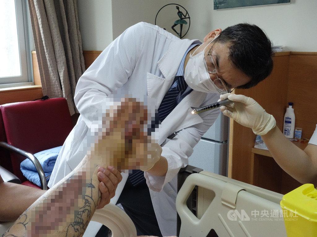 蔡姓男子因血糖過高併發急性左下肢血栓與腔室症候群,導致左腳掌發黑壞死,恐需截肢保命,大林慈濟醫院整形外科主任黃介琦(圖)以顯微游離皮瓣重建手術讓患者免於截肢。(大林慈濟醫院提供)中央社記者蔡智明傳真 109年11月17日
