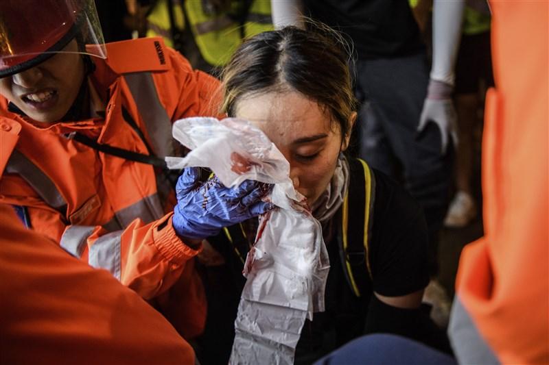 香港一名黑衣女子11日參與圍攻尖沙咀警署時,右眼受傷,引發反送中支持者不滿。(法新社提供)