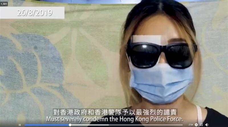 香港網民發起的民間記者會29日下午播出尖沙咀示威衝突中右眼受傷女子的談話短片,她戴著墨鏡、口罩,右眼則蒙著紗布。(圖取自facebook.com/standnewshk)