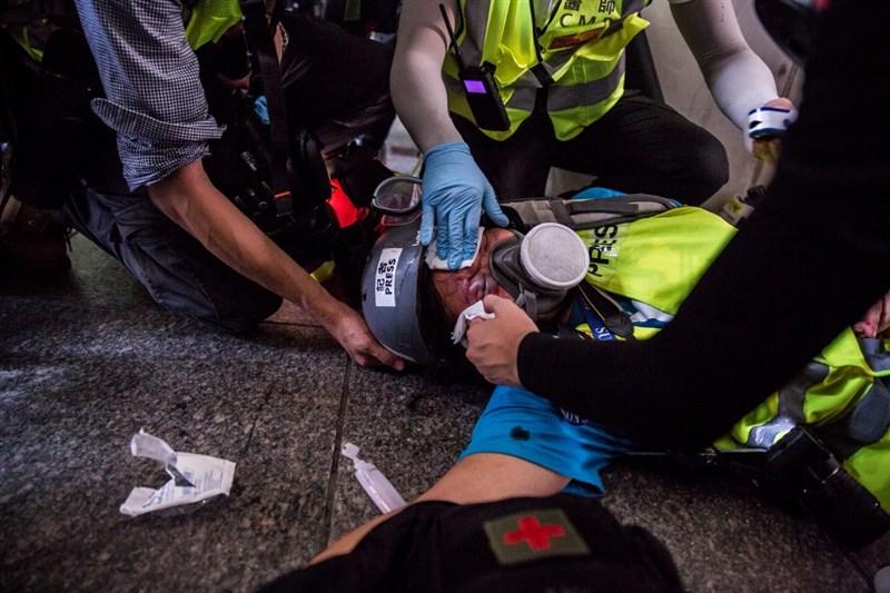 印尼女記者英達(中)9月29日疑似遭港警持槍射中右眼眼眉,醫生診治後指出,英達的右眼將永久失明。(法新社提供)
