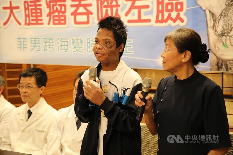 來自菲律賓的麥可(右2)左臉有一顆12公分的巨大腫瘤,影響咀嚼、吞嚥,也導致臉部變形,今年他跨海到花蓮慈濟醫院接受治療,成功切除臉上腫瘤。(花蓮慈濟醫院提供)中央社記者張祈傳真 108年10月17日
