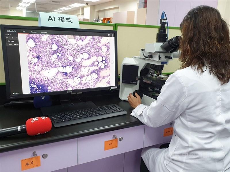 台大醫院24日舉行記者會,發表和AI廠商雲象科技共同研發的骨髓抹片AI自動分類計數系統,在雙方合作下,已建立超過30萬顆骨髓細胞、共計10類主分類及40類次分類的資料集。中央社記者陳偉婷攝 108年12月24日