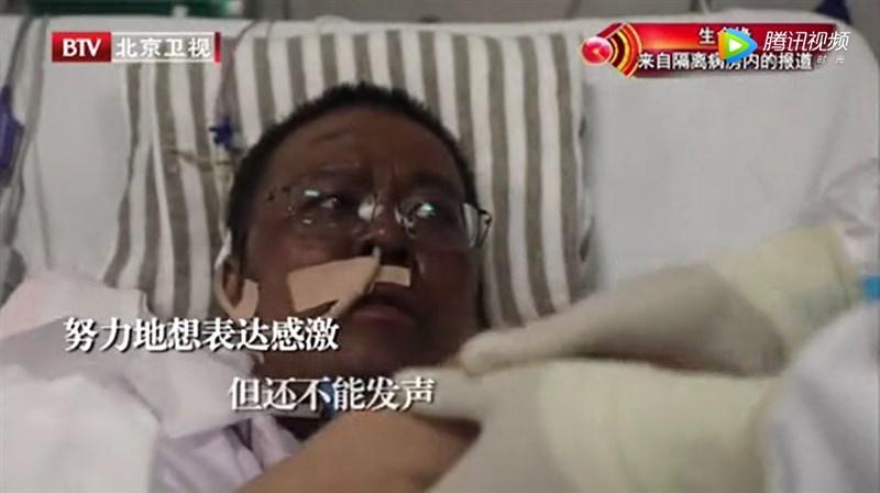 根據中國環球時報報導,兩名染武漢肺炎的湖北省醫師雖然逃過死劫,卻全身暗沉整臉發黑。(圖取自騰訊視頻網頁v.qq.com)