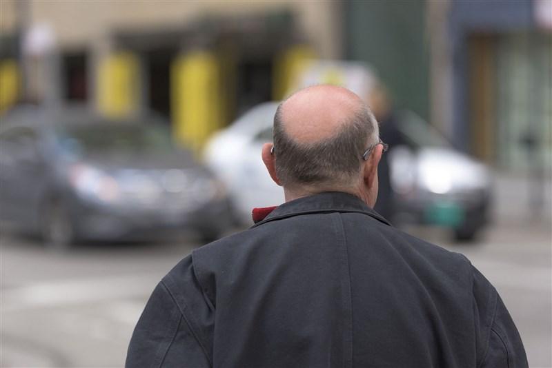 日本研究發現持續吃高脂肪食物導致肥胖的老鼠,將造成毛髮稀疏。專家表示,人類被認為也有相同的構造,為了預防掉髮,改變日常所攝取食物等生活習慣很重要。(示意圖 /圖取自Unsplash圖庫)