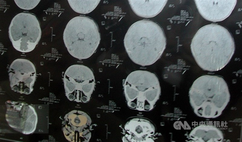 北榮研究團隊找到特有的腦中風突變基因,約1%台灣民眾帶有此基因突變,有此突變者會增加11倍腦部小血管阻塞性中風機會。圖為腦斷層掃瞄影像。(中央社檔案照片)