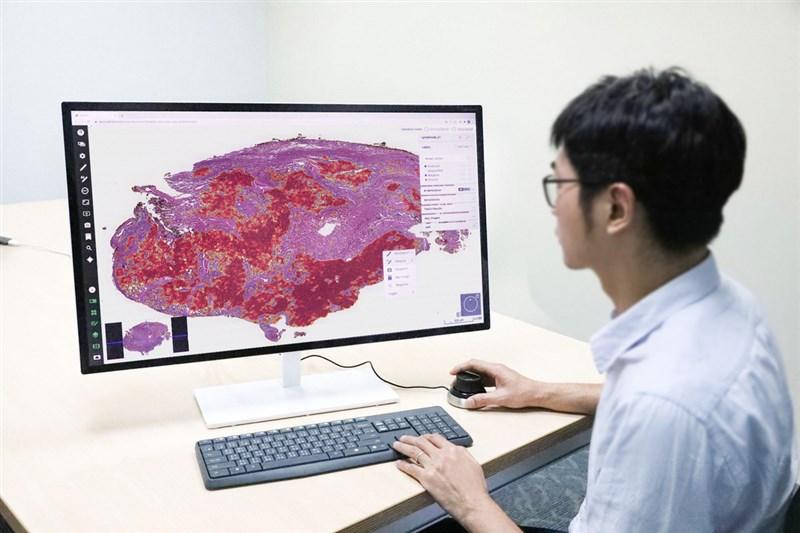台北醫學大學巨量影像資料庫研究計畫,以人工智慧AI 系統開發肺部腫瘤不需人工標註的病理影像辨識系統,準確率達95%以上,且每名病人僅須3到5分鐘就可判讀。(北醫大提供)中央社記者陳偉婷傳真 110年2月26日