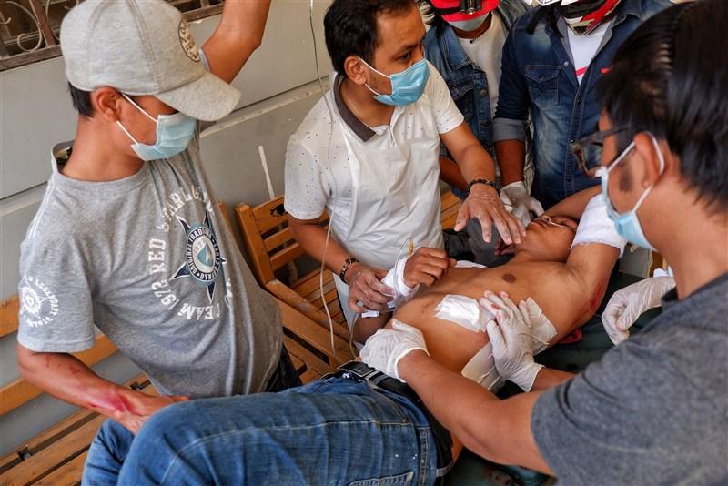 緬甸軍方發動政變後,安全部隊動用暴力鎮壓示威民眾;外交消息人士3月2日透露,英國已要求聯合國安全理事會5日就緬甸情勢召開新會議。圖為緬甸示威民眾2月28日因警方強勢驅離而受傷。(安納杜魯新聞社)