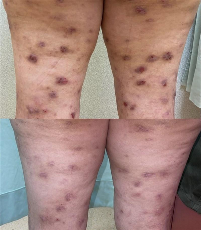 皮膚科醫師指出,異位性皮膚炎是皮膚濕疹的一種,常引起搔抓影響睡眠、情緒,醫師提醒,只要做好皮膚保溼,正面放鬆避免接觸誘因,症狀即可好轉並改善生活品質。圖為患者治療前搔癢紅腫的皮疹(上),經治療後皮疹已有消退(下)。(新北市立土城醫院提供)中央社記者黃旭昇新北市傳真 110年3月6日