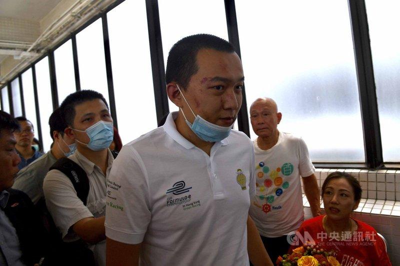 2019年在香港機場一度被「反送中」示威者圍毆的環球時報記者付國豪,20日傳出因為收入經濟狀況難在北京安身,加上家庭因素,只好離開環時。圖為2019年8月14日,付國豪離開香港瑪嘉烈醫院。(中新社提供)中央社 110年4月21日