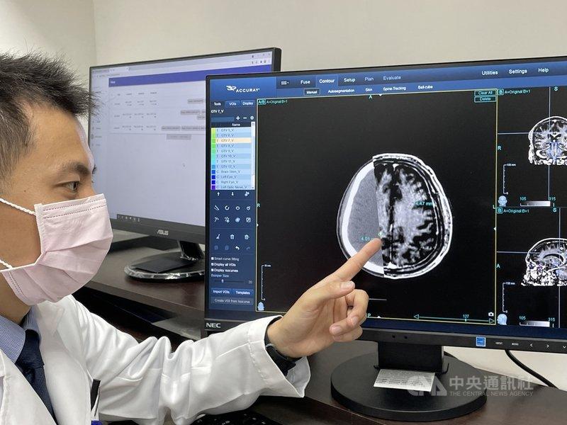 台大醫院4日舉行記者會,宣布與醫隼智慧公司合作研發出全球首款腫瘤自動圈選AI系統VBrain,可自動圈選協助醫師找出微小不易發現的腦癌。 中央社記者江慧珺攝 110年5月4日