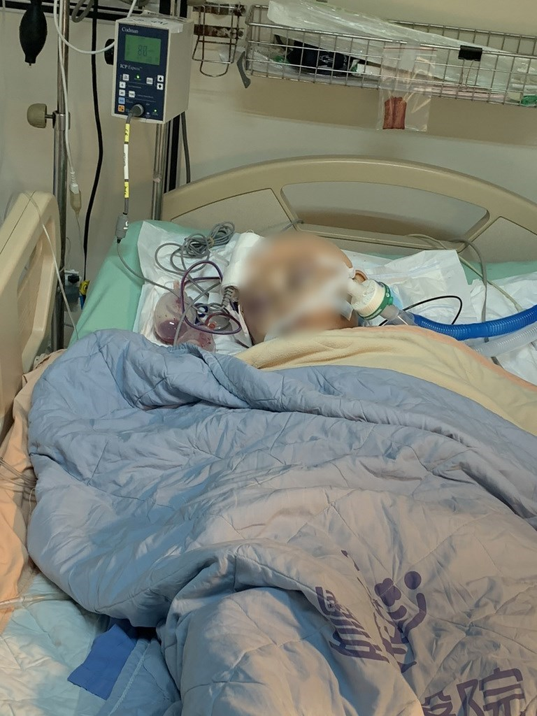 黃小弟日前上柔道課時遭教練、學長連摔昏迷,目前在醫院救治中。術後16天,黃童腦壓降到正常值25。圖為黃小弟4月24日在加護病房治療。(家屬提供)