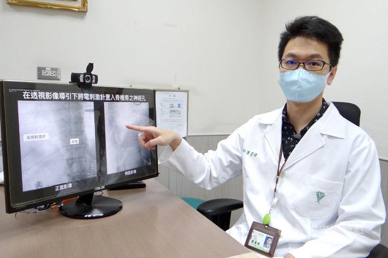 奇美醫學中心麻醉部暨疼痛科主治醫師廖書緯(圖)指出,年齡大於50歲且有多重慢性病,免疫功能不良的族群,可評估接受施打帶狀皰疹疫苗來預防發病。(奇美醫學中心提供)中央社記者楊思瑞台南傳真  110年7月29日